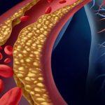  لعلاج الكولسترول فى الدم .. وصفات مجربة