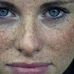 أفضل الوصفات لإزالة النمش من الوجه